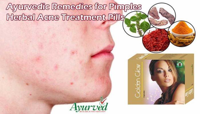 Ayurvedic Remedies for Pimples Treatment
